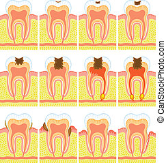 interno, dente, struttura
