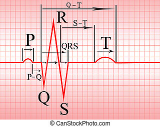 Intervals, compex of ECG - Complex of ECG on thermal paper,...