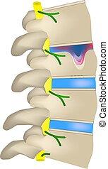 intervertebral, schmorl., aislado, disc., spine., vector, ...