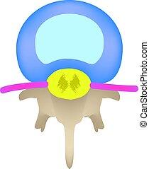 intervertebral, topp, isolerat, disc., anatomisk, infographics., vektor, illustration, bakgrund, utsikt., spine., struktur
