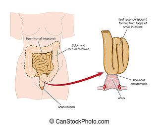 intestin, enlevé, poche, rectal