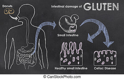 Intestinal Damage of Gluten on a Blackboard