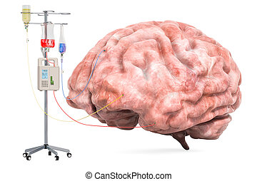 Intravenous therapy system with human brain. Treatment of...