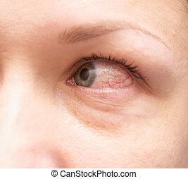 irritated eye