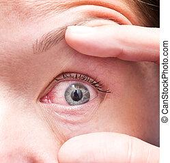 irritated eye - Close up of irritated red bloodshot eye