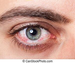 Irritated red bloodshot eye - Close Up of irritated red ...