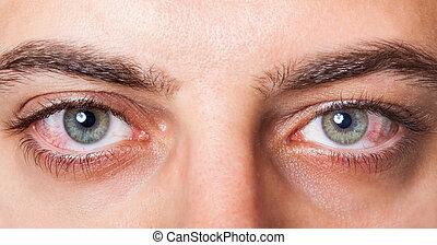 Irritated red bloodshot eye - Close Up of two irritated red ...