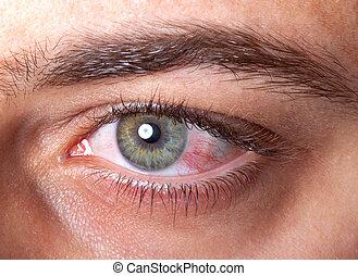 Irritated red bloodshot eye - Close Up of irritated red...