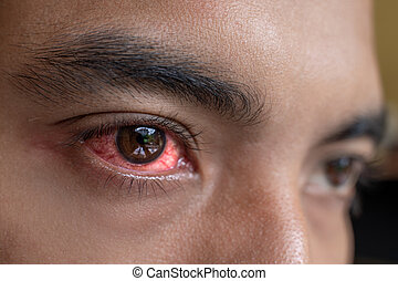 irritated red eyes need sterile eye drops - irritated red...