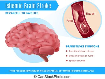 Ischemic Brain Stroke Poster