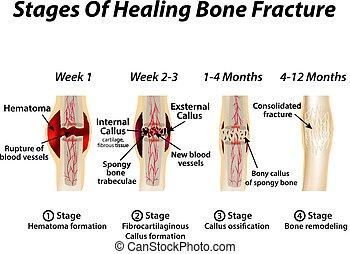 isolé, illustration, fracture., arrière-plan., infographics., vecteur, formation, guérison, étapes, callus., os