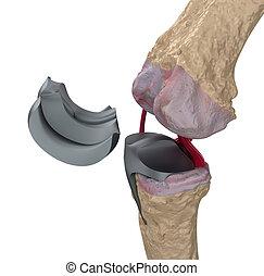 isolado, dobradiça, titânio, joint., joelho, branca