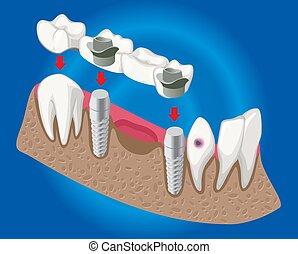isométrique, concept, prothétique, art dentaire