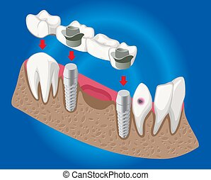 isometrico, concetto, protesico, odontoiatria