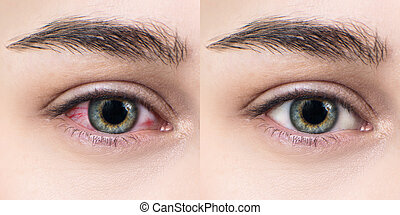 Itchy and irritated female eye. - Red eye of woman before...