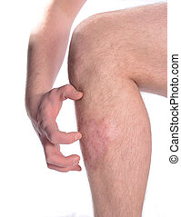 Conceptual image of an itchy skin disease.