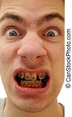 jaune, dents
