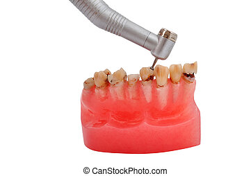 jaw and dental handpiece - jaw affected tooth decay and...