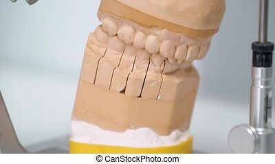Jaw model in dental clinic - Jaw tooth model in dental...