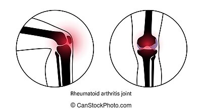 joelho, artrite, conjunto