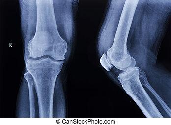 joelho, cobrança, raio x, normal