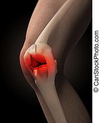 joelho, doloroso