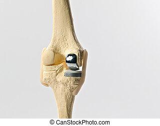 joelho, human, substituição