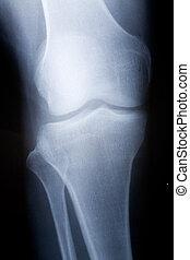 joelho, imagem, raio x