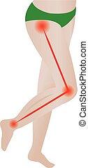 Joint pain. Sciatic Nerve. sciatic back pain. vector...