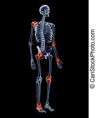 joints, douloureux