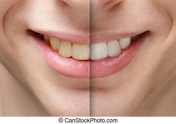 joven, sonrisa, antes y después, dientes, tiza