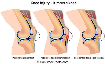 jumper's, knä, anatomi
