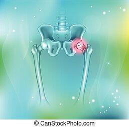 junção hip, artrite