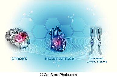 kärl, hjärta, blod, sjukdomar