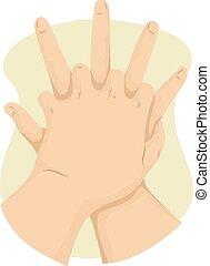 kéz, elsősegély