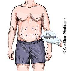 kéz, sebészet, rajz, test, hím, műanyag, megjelöl