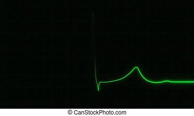 kardiogram, 4