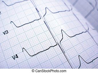kardiograph