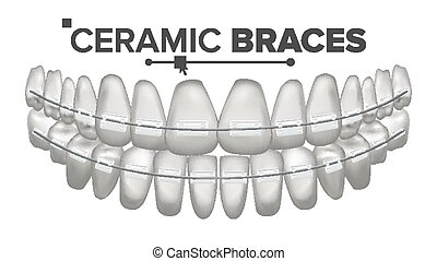 keramik, afstivninger, vector., menneske, jaw., tandlæge,...