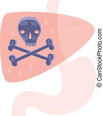Kidney Cancer - A concept for liver cancer or liver disease.