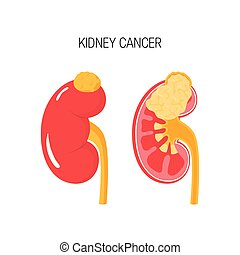 Kidney cancer vector concept
