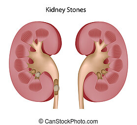 Kidney stones - Healthy kidney and kidney with stones, eps8
