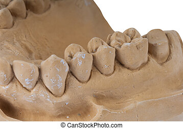 kiefer, dental