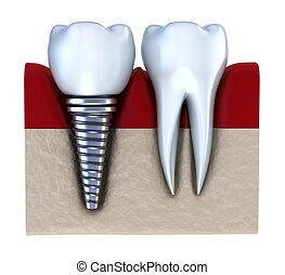 kiefer, dental, implantiert hat, -, implantat