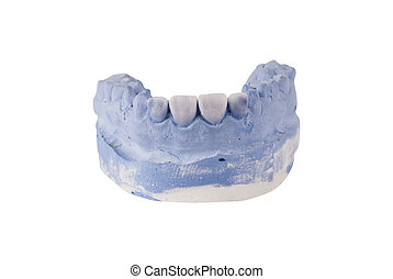 kiefer, dental, weißes, freigestellt