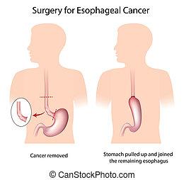 kirurgi, by, esophageal, kræft