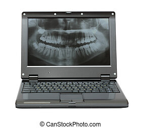 kleine, draagbare computer, met, dentaal, afbeelding, van, kaak