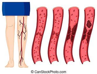 klonter, benen, bloed, menselijk