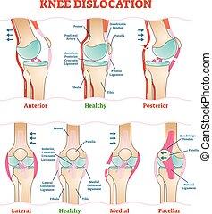 Knee Dislocations - medical vector illustration diagrams. ...