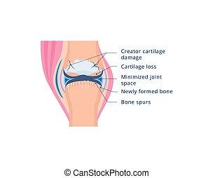 Knee joint damage with osteoarthritis, flat vector illustration isolated.